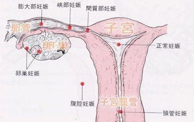 左边输卵管通畅,不一定左边卵巢 如果左侧输卵管功能异常,建议及图片